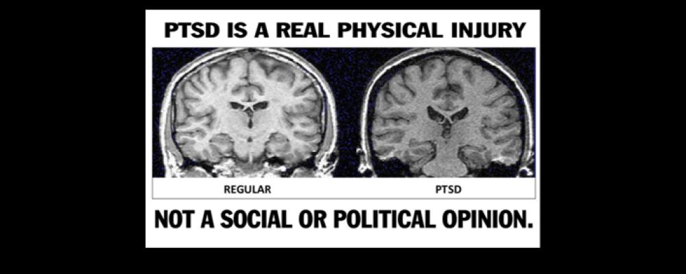 PTSD é também uma doença física!